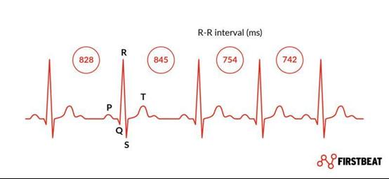 心率变异性(HRV)-RR间隔